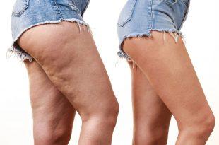 effets du CBD SUR la cellulite
